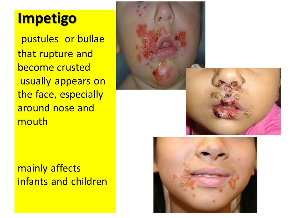 The infection is spread by direct contact with lesions or with nasal carriers.