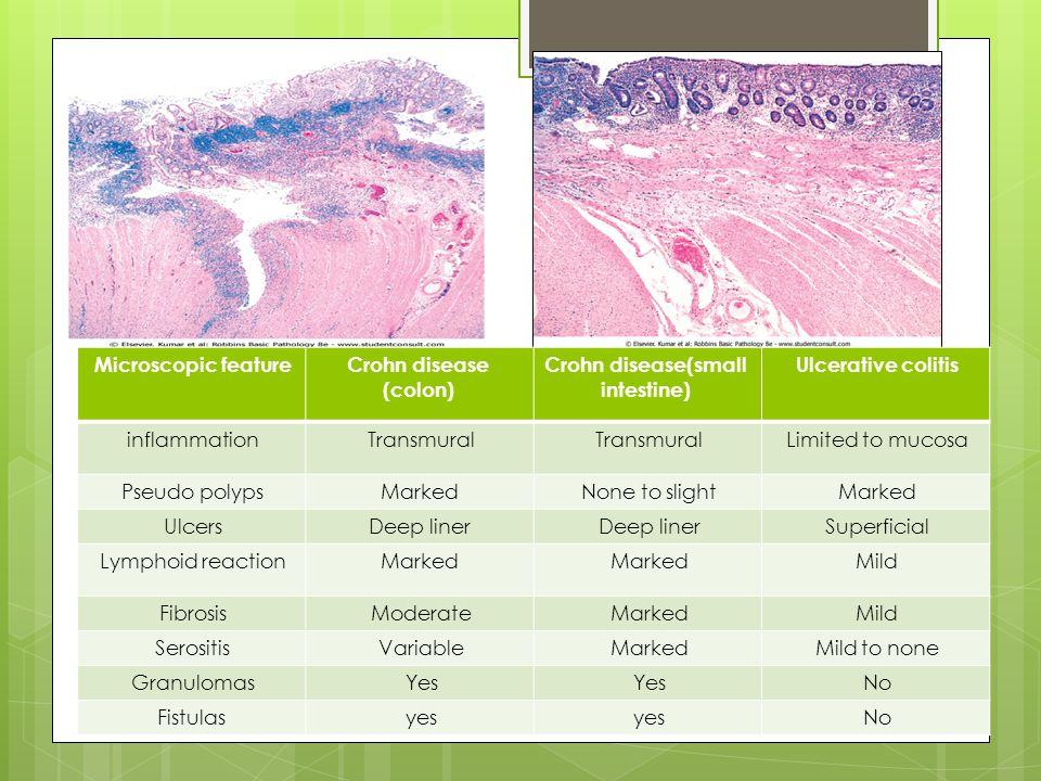 Ulcerative colitisCrohn disease(small intestine) Crohn disease (colon) Microscopic feature Limited to mucosaTransmural inflammation MarkedNone to slightMarkedPseudo polyps SuperficialDeep liner Ulcers MildMarked Lymphoid reaction MildMarkedModerateFibrosis Mild to noneMarkedVariableSerositis NoYes Granulomas Noyes Fistulas