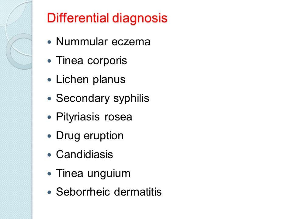 Differential diagnosis Nummular eczema Tinea corporis Lichen planus Secondary syphilis Pityriasis rosea Drug eruption Candidiasis Tinea unguium Seborrheic dermatitis
