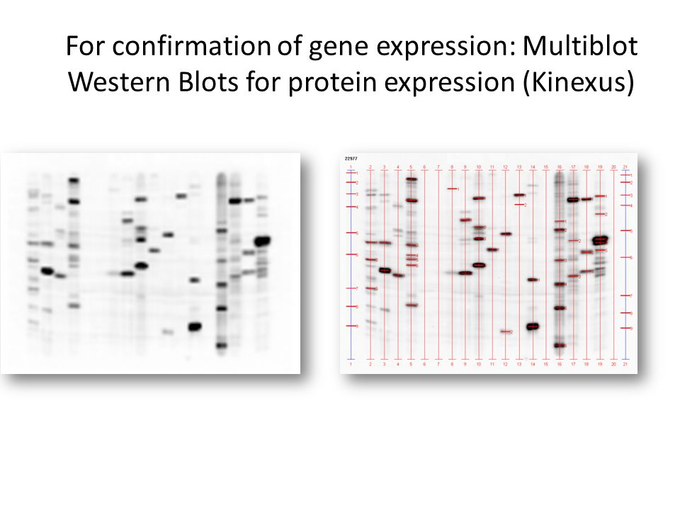 For confirmation of gene expression: Multiblot Western Blots for protein expression (Kinexus)