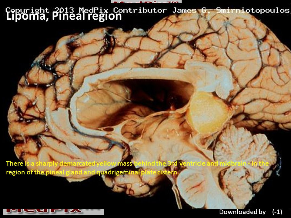 Lipoma, Pineal region There is a sharply demarcated yellow mass behind the 3rd ventricle and midbrain - in the region of the pineal gland and quadrigeminal plate cistern.