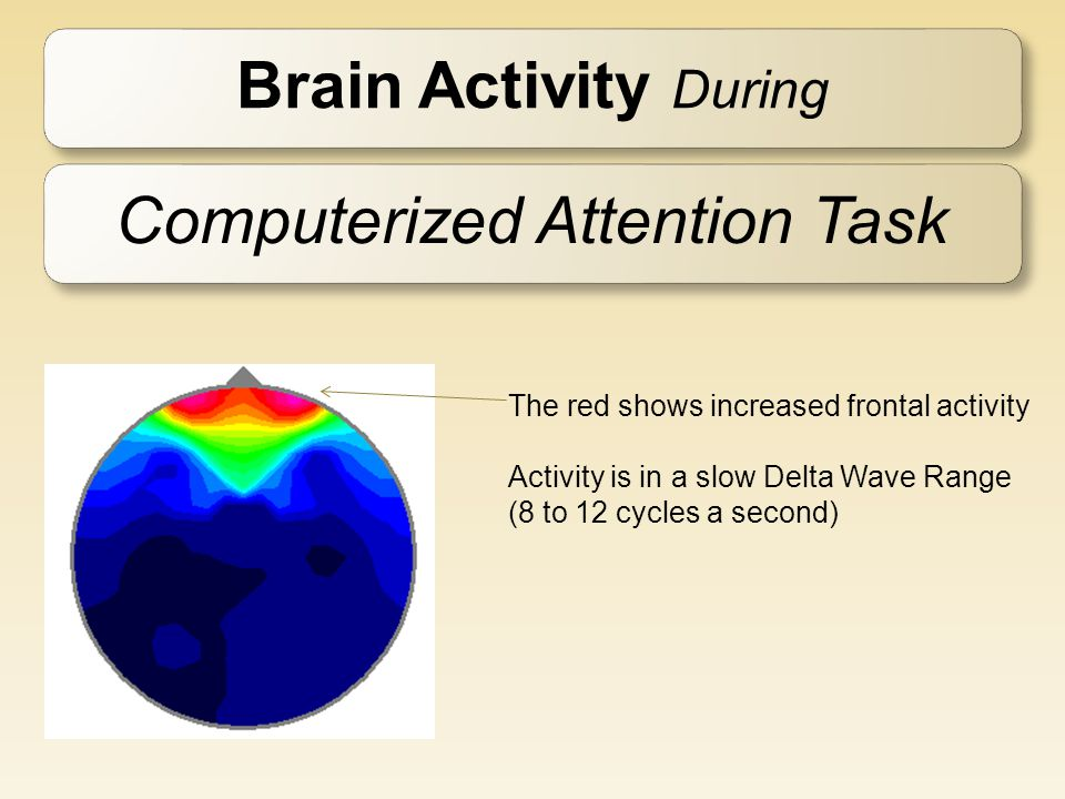 Brain Activity During Computerized Attention Task The red shows increased frontal activity Activity is in a slow Delta Wave Range (8 to 12 cycles a se
