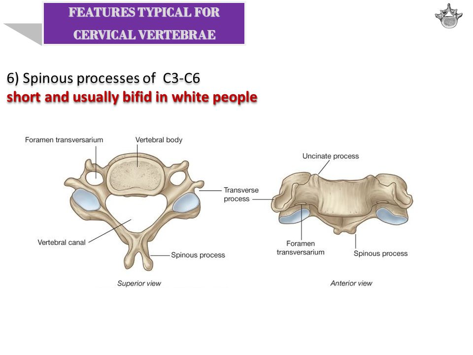 6) Spinous processes of C3-C6 short and usually bifid in white people 6) Spinous processes of C3-C6 short and usually bifid in white people FEATURES T