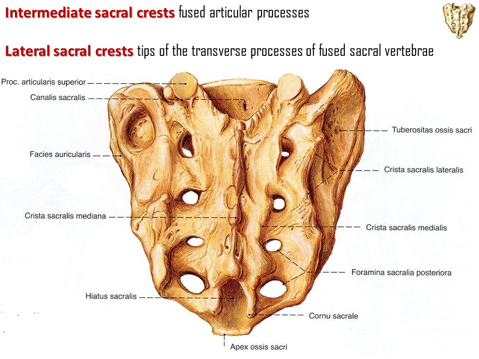Intermediate sacral crests Intermediate sacral crests fused articular processes Lateral sacral crests Lateral sacral crests tips of the transverse pro