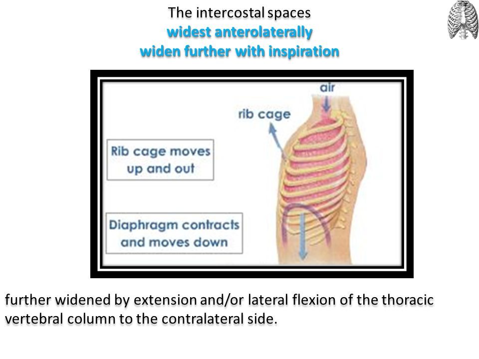 The intercostal spaces widest anterolaterally widen further with inspiration further widened by extension and/or lateral flexion of the thoracic verte