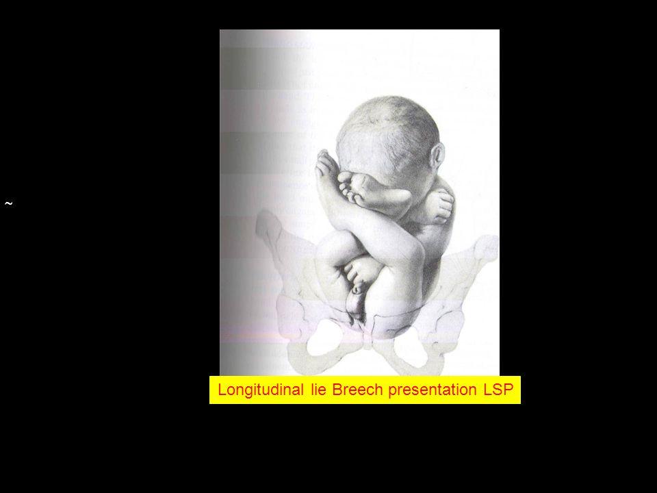 ~ Longitudinal lie Breech presentation LSP