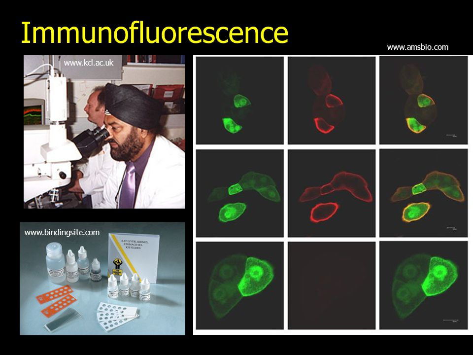 Immunofluorescence www.amsbio.com www.kcl.ac.uk www.bindingsite.com