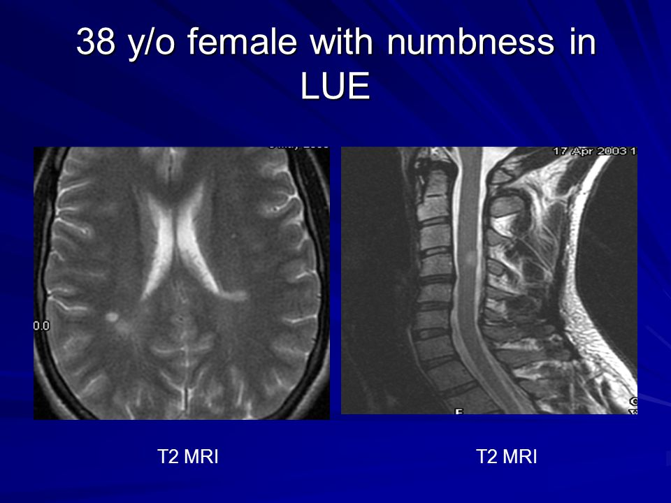 38 y/o female with numbness in LUE T2 MRI