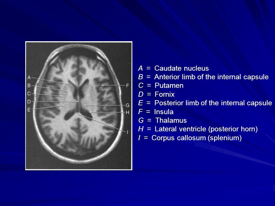 A = Caudate nucleus B = Anterior limb of the internal capsule C = Putamen D = Fornix E = Posterior limb of the internal capsule F = Insula G = Thalamu