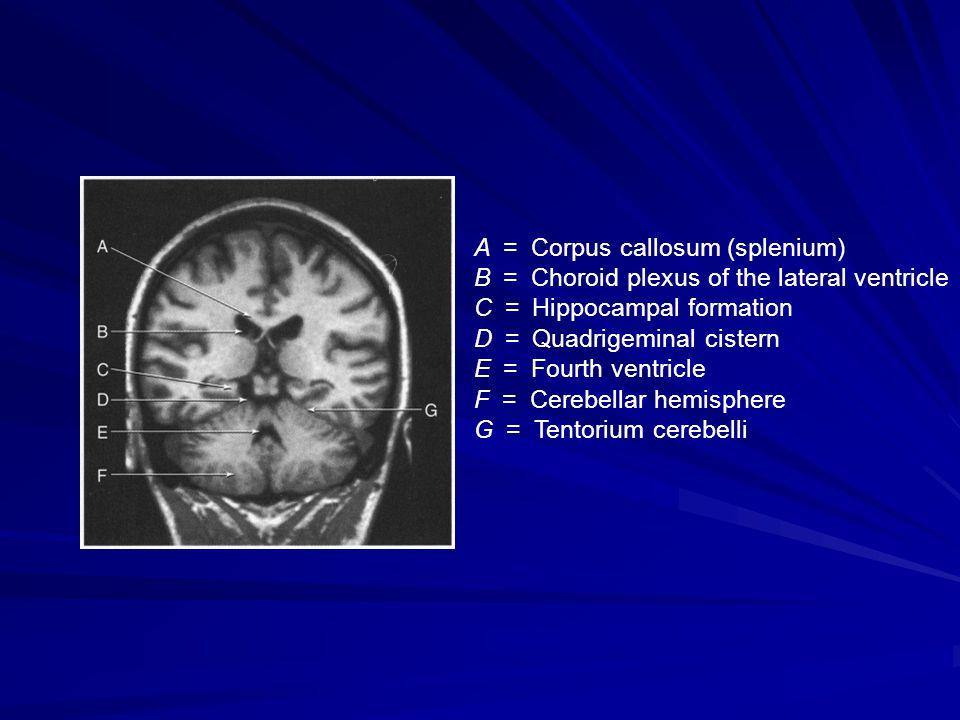 A = Corpus callosum (splenium) B = Choroid plexus of the lateral ventricle C = Hippocampal formation D = Quadrigeminal cistern E = Fourth ventricle F