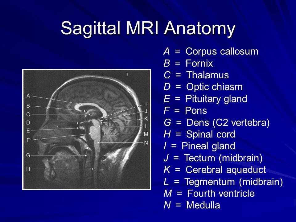 Sagittal MRI Anatomy A = Corpus callosum B = Fornix C = Thalamus D = Optic chiasm E = Pituitary gland F = Pons G = Dens (C2 vertebra) H = Spinal cord
