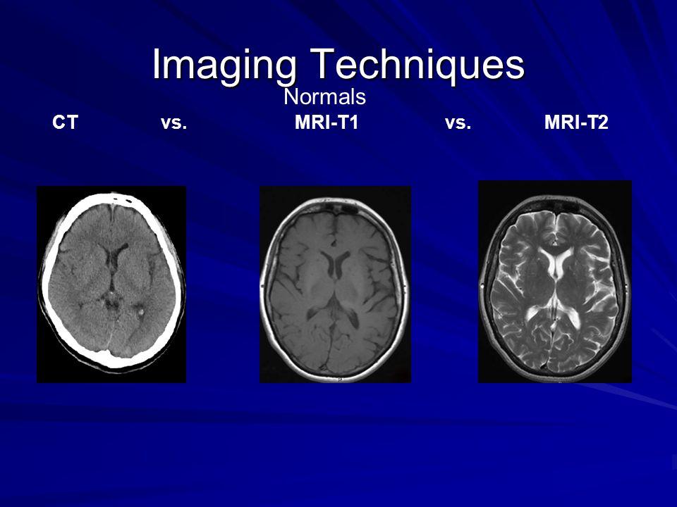 CT vs. MRI-T1 vs. MRI-T2 Normals
