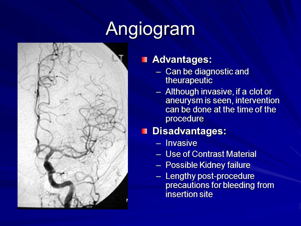 Angiogram Advantages: –Can be diagnostic and theurapeutic –Although invasive, if a clot or aneurysm is seen, intervention can be done at the time of t