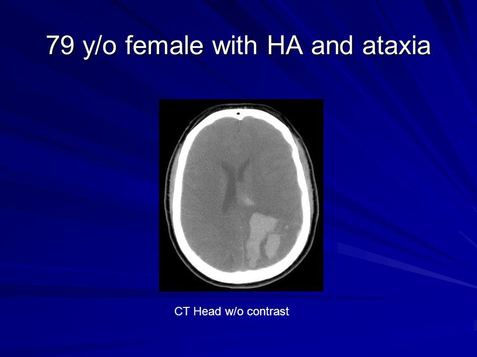 79 y/o female with HA and ataxia CT Head w/o contrast