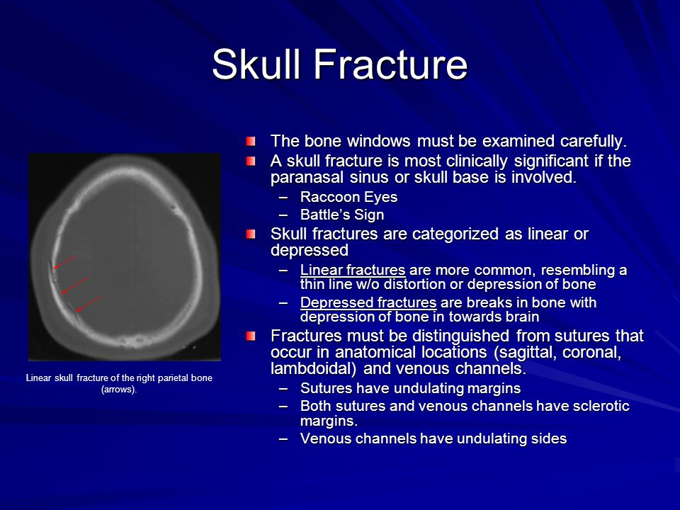 Skull Fracture The bone windows must be examined carefully. A skull fracture is most clinically significant if the paranasal sinus or skull base is in