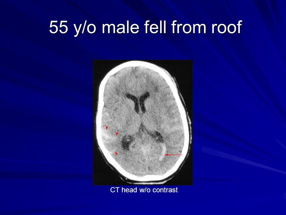 55 y/o male fell from roof 55 y/o male fell from roof CT head w/o contrast
