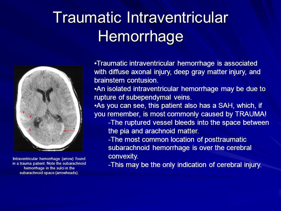 Traumatic Intraventricular Hemorrhage Traumatic intraventricular hemorrhage is associated with diffuse axonal injury, deep gray matter injury, and bra
