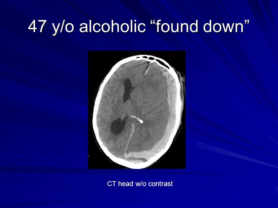 """47 y/o alcoholic """"found down"""" CT head w/o contrast"""