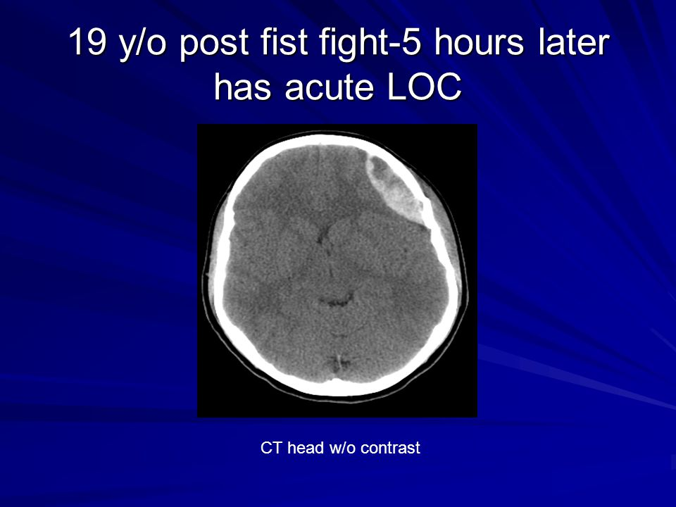 19 y/o post fist fight-5 hours later has acute LOC CT head w/o contrast