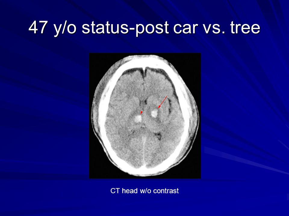 47 y/o status-post car vs. tree CT head w/o contrast