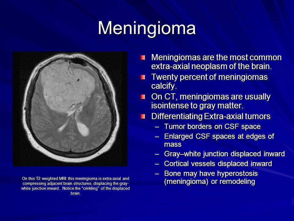 Meningioma Meningiomas are the most common extra-axial neoplasm of the brain. Twenty percent of meningiomas calcify. On CT, meningiomas are usually is