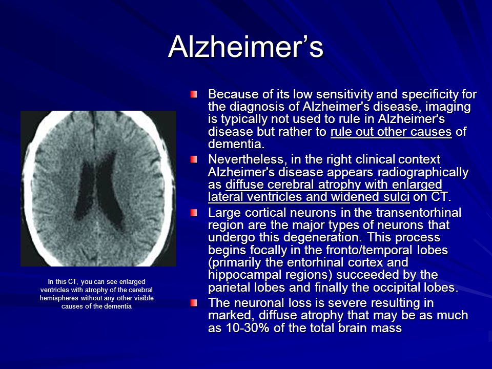 Alzheimer's Because of its low sensitivity and specificity for the diagnosis of Alzheimer's disease, imaging is typically not used to rule in Alzheime