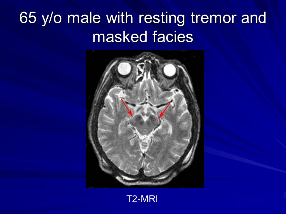 65 y/o male with resting tremor and masked facies T2-MRI