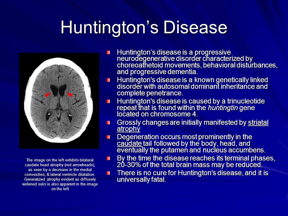 Huntington's Disease Huntington's disease is a progressive neurodegenerative disorder characterized by choreoathetoid movements, behavioral disturbanc