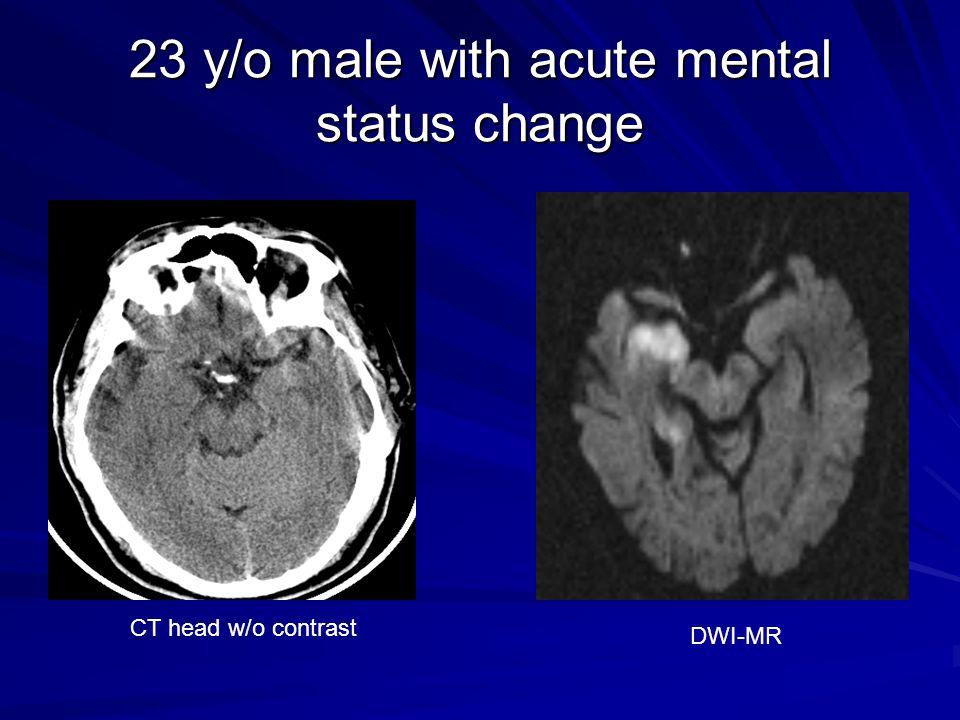 23 y/o male with acute mental status change CT head w/o contrast DWI-MR