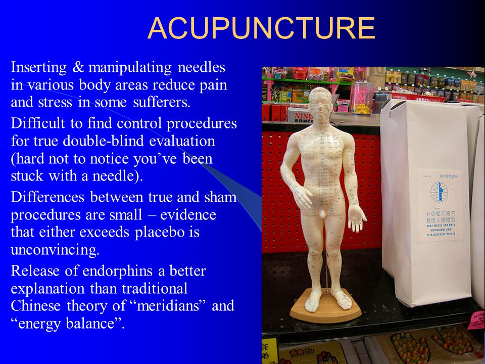 ACUPUNCTURE Inserting & manipulating needles in various body areas reduce pain and stress in some sufferers.