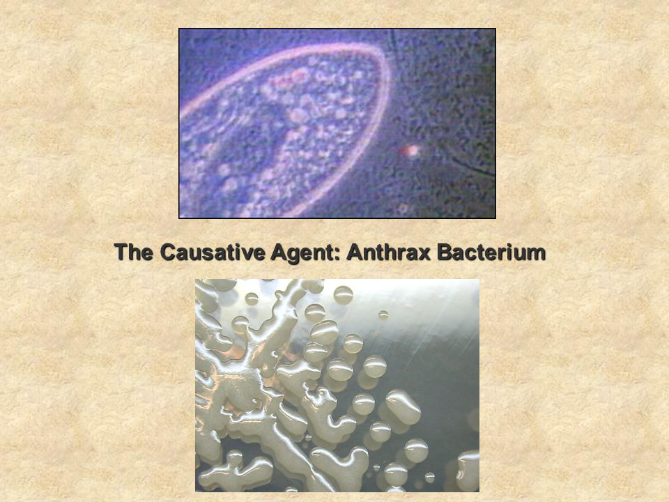The Causative Agent: Anthrax Bacterium