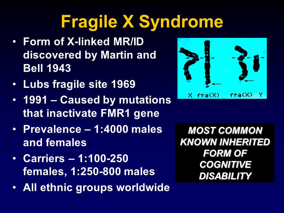 Fragile X Syndrome Form of X-linked MR/ID discovered by Martin and Bell 1943 Lubs fragile site 1969 1991 – Caused by mutations that inactivate FMR1 gene Prevalence – 1:4000 males and females Carriers – 1:100-250 females, 1:250-800 males All ethnic groups worldwide MOST COMMON KNOWN INHERITED FORM OF COGNITIVE DISABILITY
