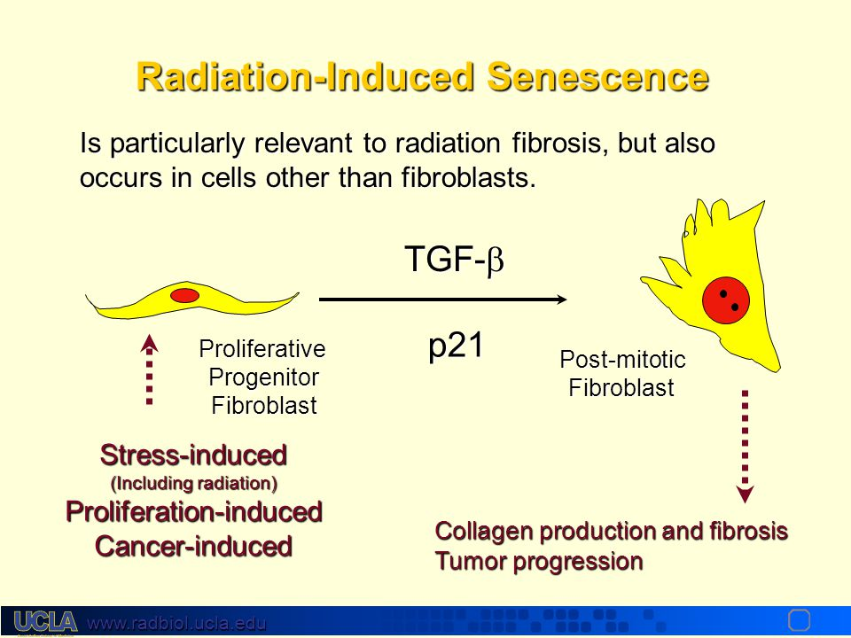 www.radbiol.ucla.edu (all with distinct, and common, gene patterns) IR is a pathological signal and can cause senescence Loss of Proliferative Ability