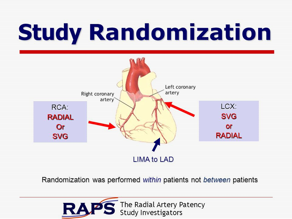 The Radial Artery Patency Study Investigators Study Randomization Study Randomization RCA:RADIALOrSVG LCX:SVGorRADIAL Randomization was performed within patients not between patients LIMA to LAD