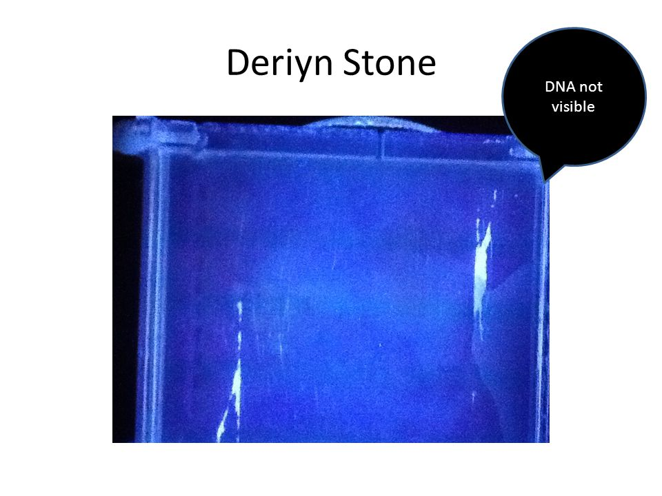 Deriyn Stone DNA not visible