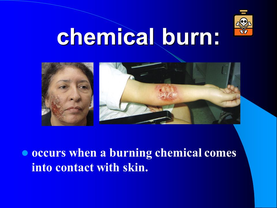 chemical burn: occurs when a burning chemical comes into contact with skin.