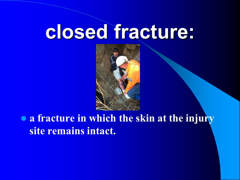 closed fracture: a fracture in which the skin at the injury site remains intact.