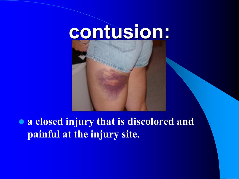 contusion: a closed injury that is discolored and painful at the injury site.