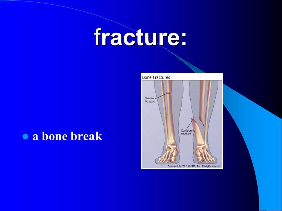 fracture: a bone break