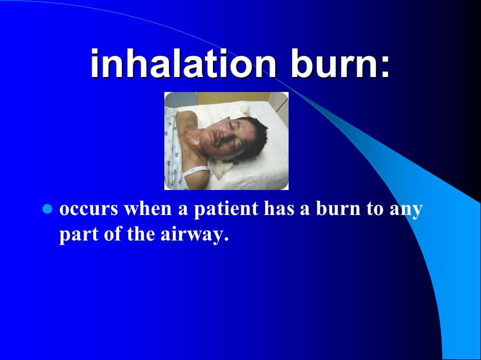inhalation burn: occurs when a patient has a burn to any part of the airway.