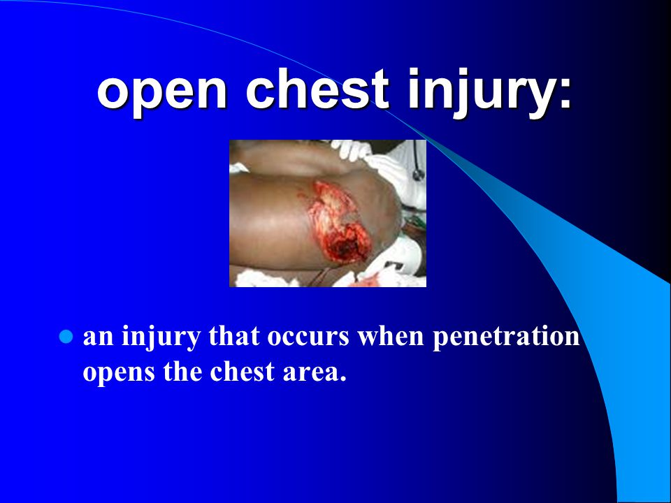 open chest injury: an injury that occurs when penetration opens the chest area.