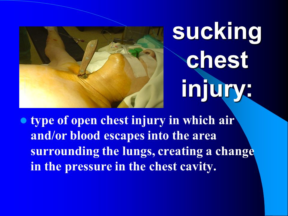 sucking chest injury: type of open chest injury in which air and/or blood escapes into the area surrounding the lungs, creating a change in the pressu