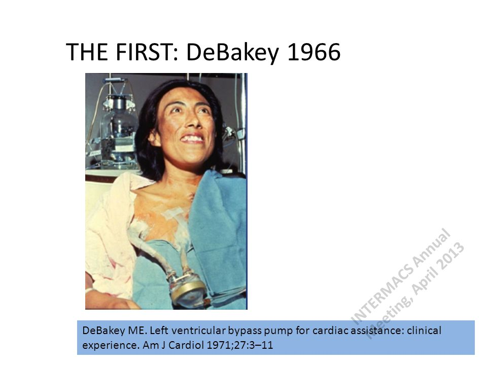THE FIRST: DeBakey 1966 DeBakey ME. Left ventricular bypass pump for cardiac assistance: clinical experience. Am J Cardiol 1971;27:3–11 INTERMACS Annu