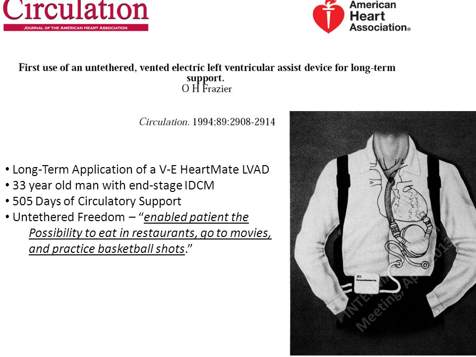 THE EXTRAORDINARY: Frazier 1994 Long-Term Application of a V-E HeartMate LVAD 33 year old man with end-stage IDCM 505 Days of Circulatory Support Unte