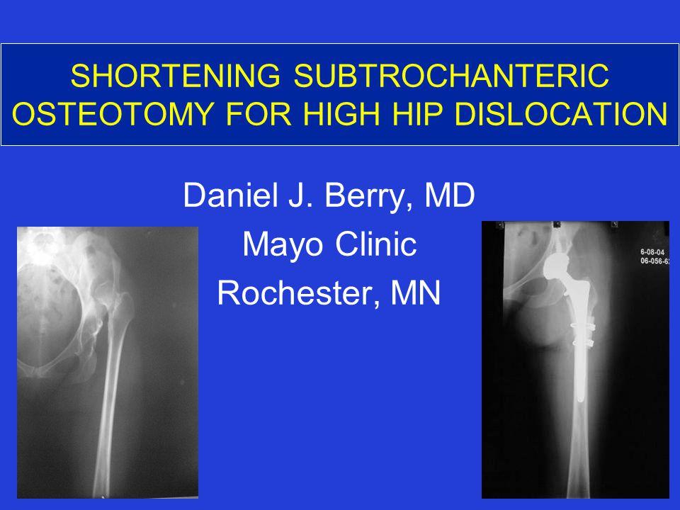 SHORTENING SUBTROCHANTERIC OSTEOTOMY FOR HIGH HIP DISLOCATION Daniel J. Berry, MD Mayo Clinic Rochester, MN