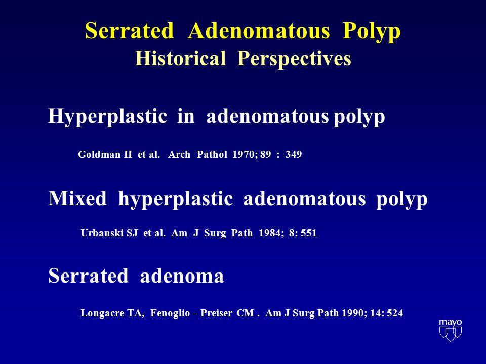 Serrated Adenomatous Polyp Historical Perspectives Hyperplastic in adenomatous polyp Goldman H et al.
