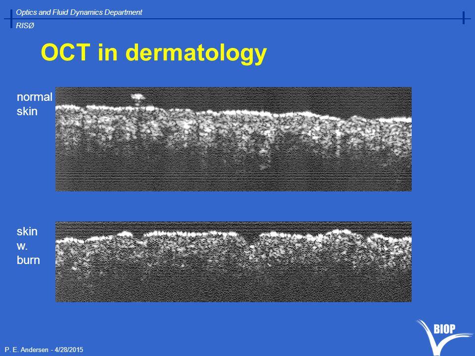 P. E. Andersen - 4/28/2015 Optics and Fluid Dynamics Department RISØ OCT in dermatology normal skin skin w. burn