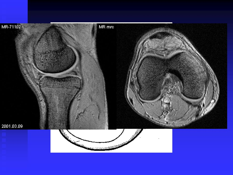 CREEP PHENOMENON CREEP EQUILIBRIUM 2-4 mm human and bovin articular cartilage > 4 - 16 hours rabbit cartilage 1 mm > 1 hour above 1 Mpa > 50 % of total fluid is squeezed FIG.