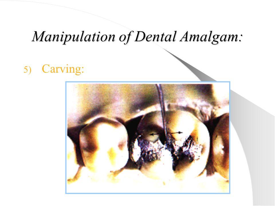 Manipulation of Dental Amalgam: 5) Carving: