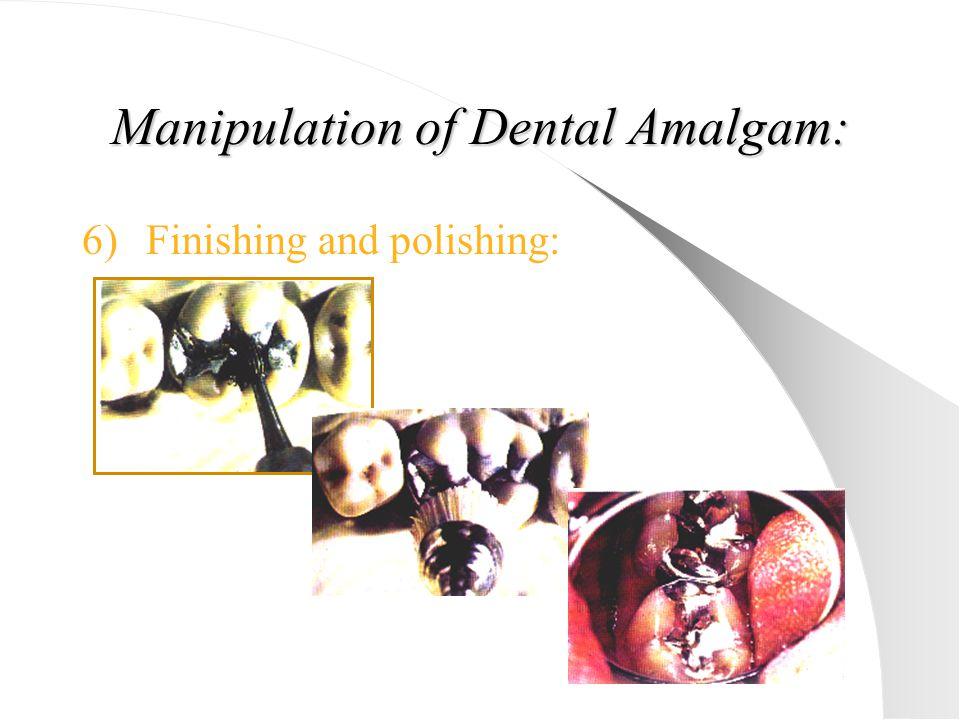 Manipulation of Dental Amalgam: 6)Finishing and polishing: